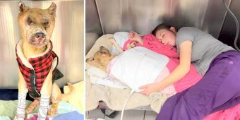Dog Badly Burnt In Fire Goes Blind And Kind Vet Hugs Him & Sleeps With Him At Night